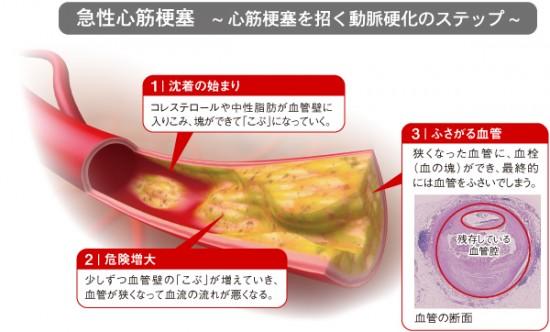 心筋梗塞過程血管図