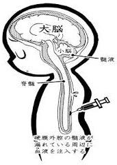 「ブラッドパッチ・脳脊髄液減少症の治療法」「