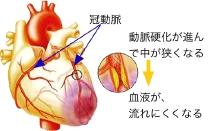 冠動脈疾患