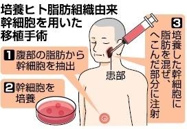 脂肪再生・顔に移植 国内初の新治療確立へ!|沖縄琉大・ロート製薬共同研究