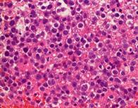 中枢神経系原発悪性リンパ腫
