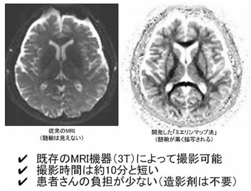 開発したミエリンマップ法(髄鞘が黒く描写される)
