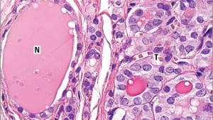 がんから除外Encapsulated thyroid tumors「被嚢性の甲状腺濾胞型乳頭癌」