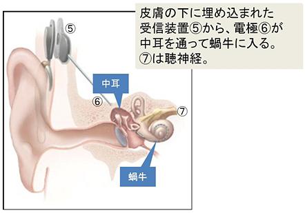 人工内耳体内部分