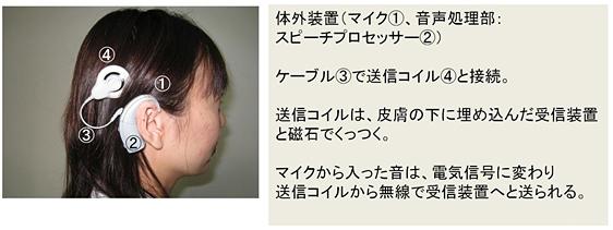 人工内耳 対外装置