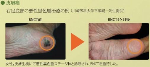 治療例1:皮膚がんBNCT治療