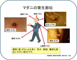 ダニ媒介脳炎で死亡|北海道で40代男性 :海外では死亡例多数