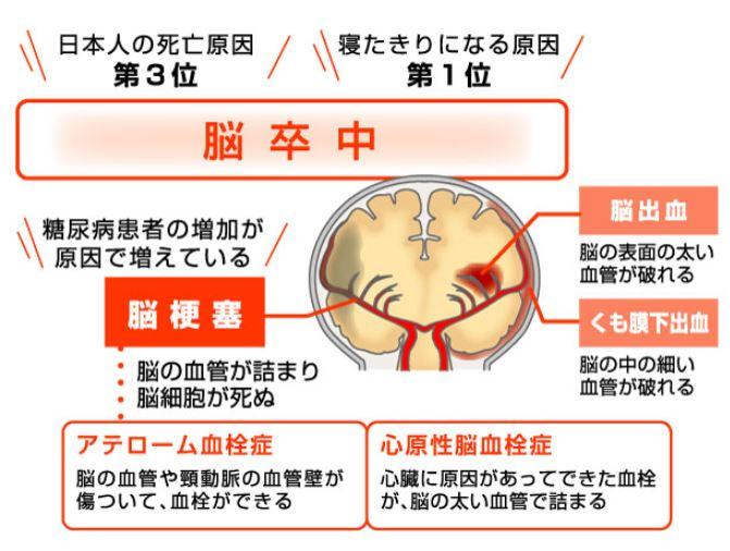 byメディマグ糖尿病と血管障害