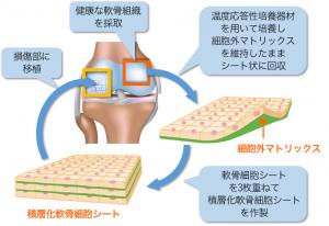 先進医療に追加「ひざ軟骨の再生治療」