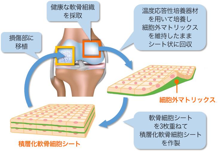 膝軟骨の再生治療 図解