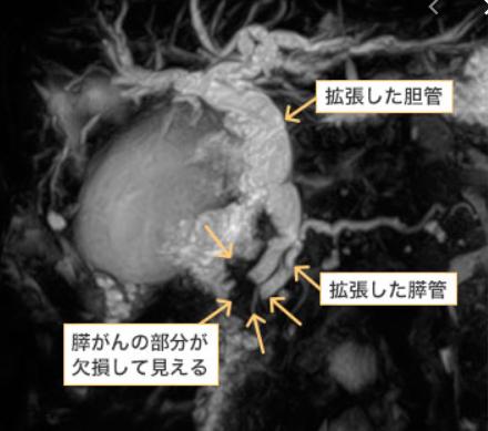 東京医科歯科大肝胆膵外科 MRCP:膵管、胆管が膵がんにより閉塞し、拡張